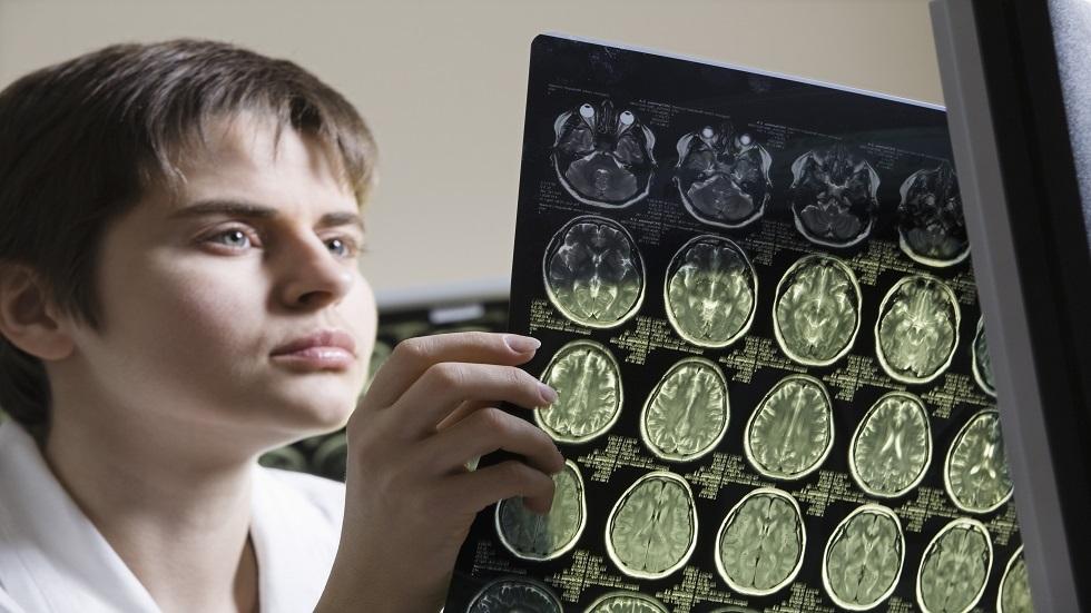 العلماء يكتشفون طريقة لتجديد شبابية الدماغ