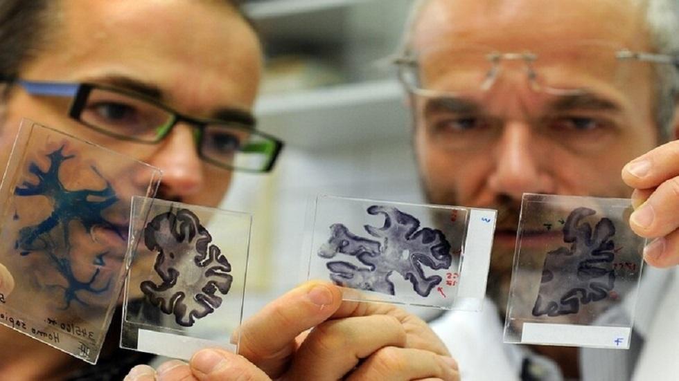 اكتشاف حقيقة غير متوقعة تتعلق بامتلاك دماغ أكبر حجما!