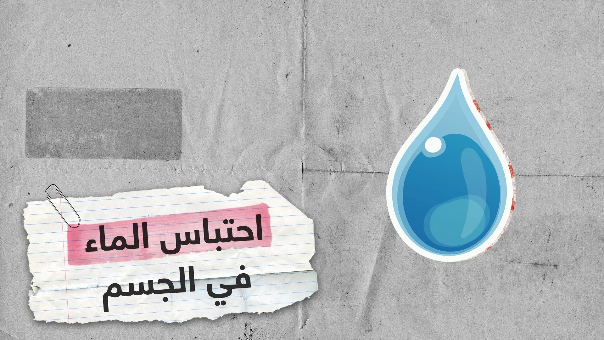 5 طرق بسيطة لتقليل احتباس الماء في الجسم