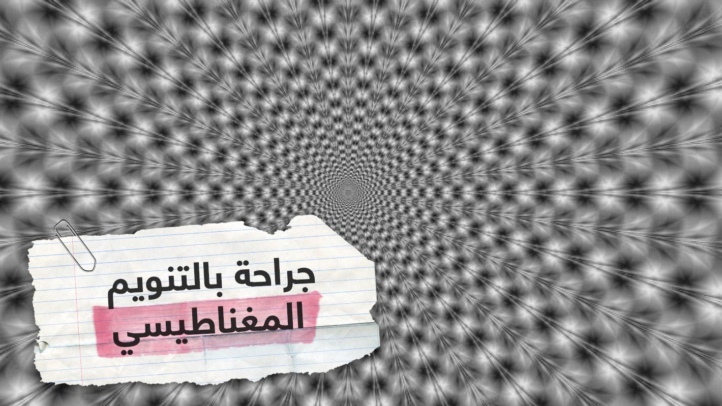 للمرة الأولى في لبنان.. طبيب يجري عملية جراحية لمريضة تحت تأثير التنويم المغناطيسي