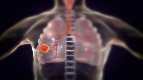 علماء أمريكيون يكشفون عن عضو أساسي يتلفه فيروس كورونا بعد مهاجمة الرئتين!
