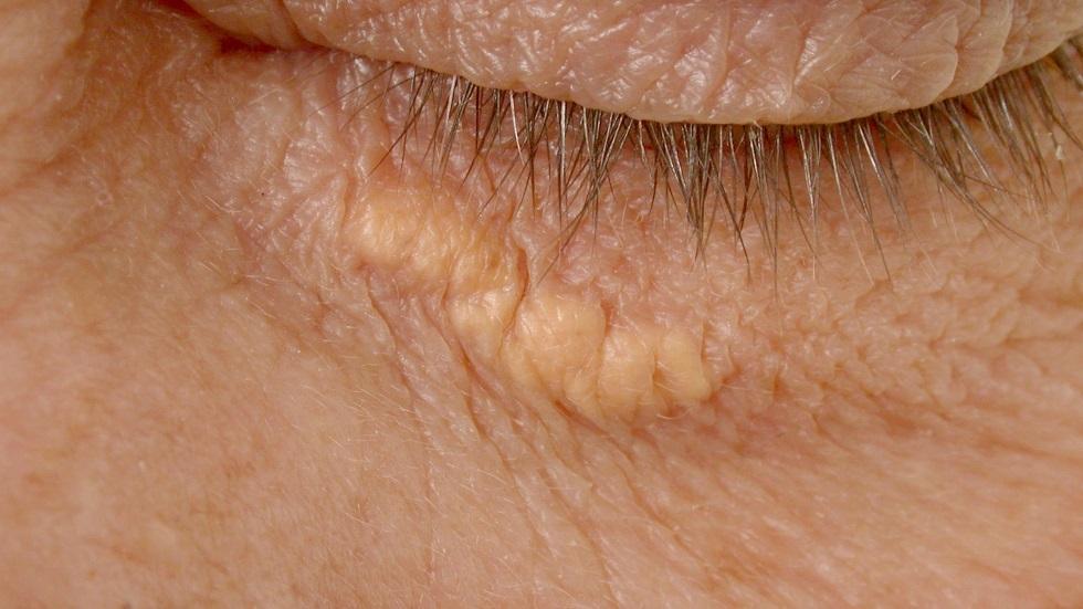 علامة في العين قد ينذر وجودها بخطر الإصابة بنوبة قلبية