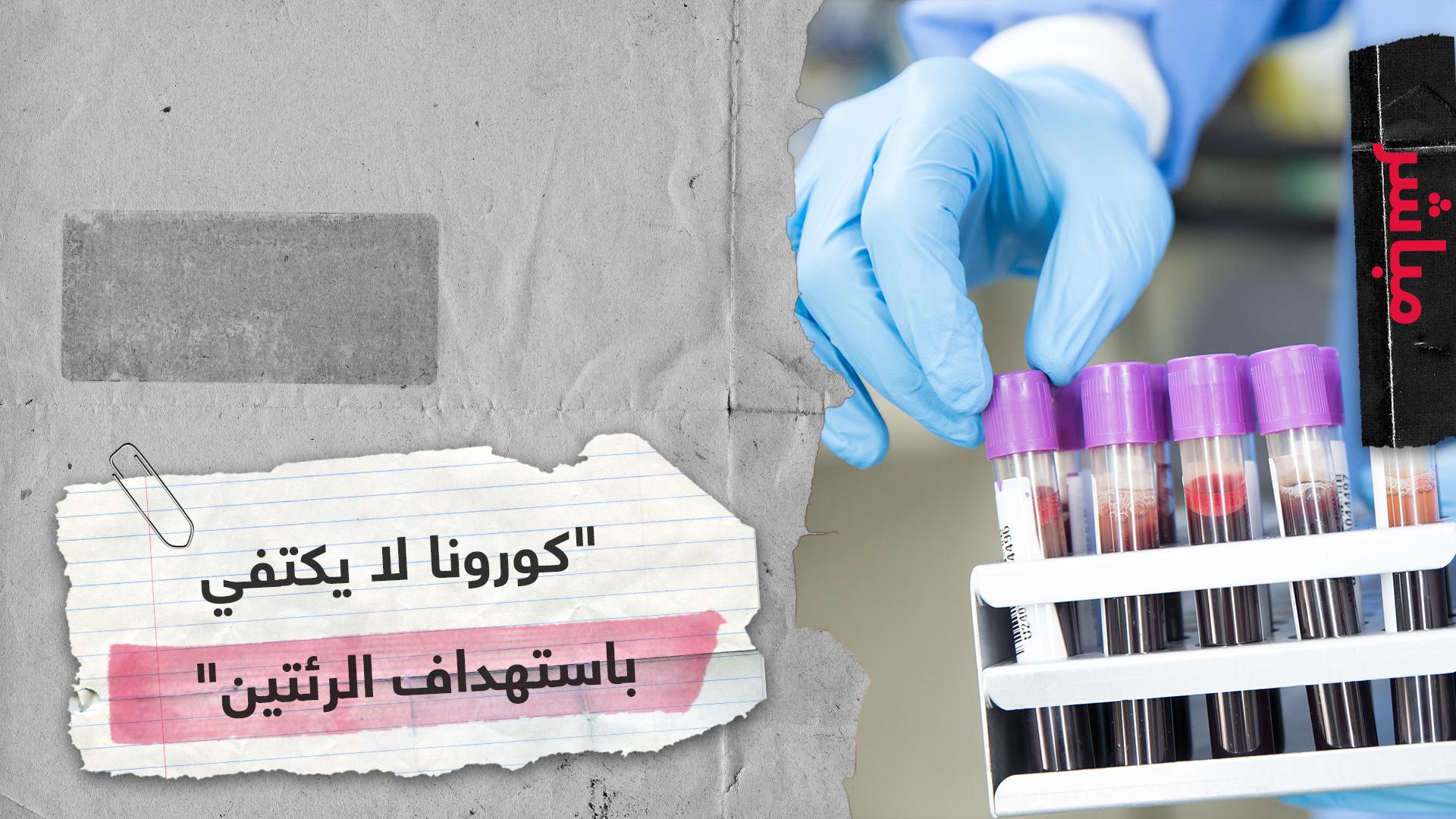 طبيب مصري يكشف معطيات جديدة عن كورونا.. الفيروس يسبب جلطات قاتلة