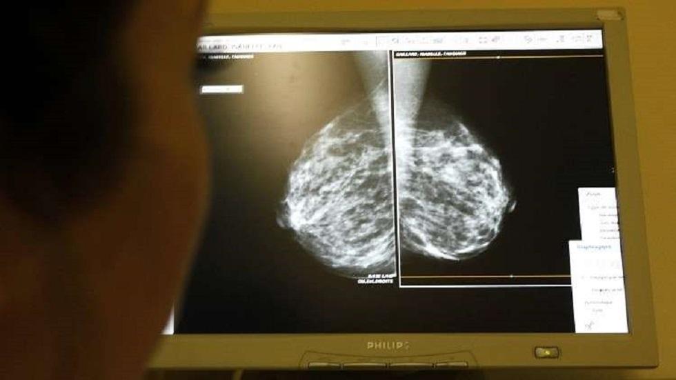 العلماء يحددون البروتين الغامض المسؤول عن سرطان الثدي العدواني
