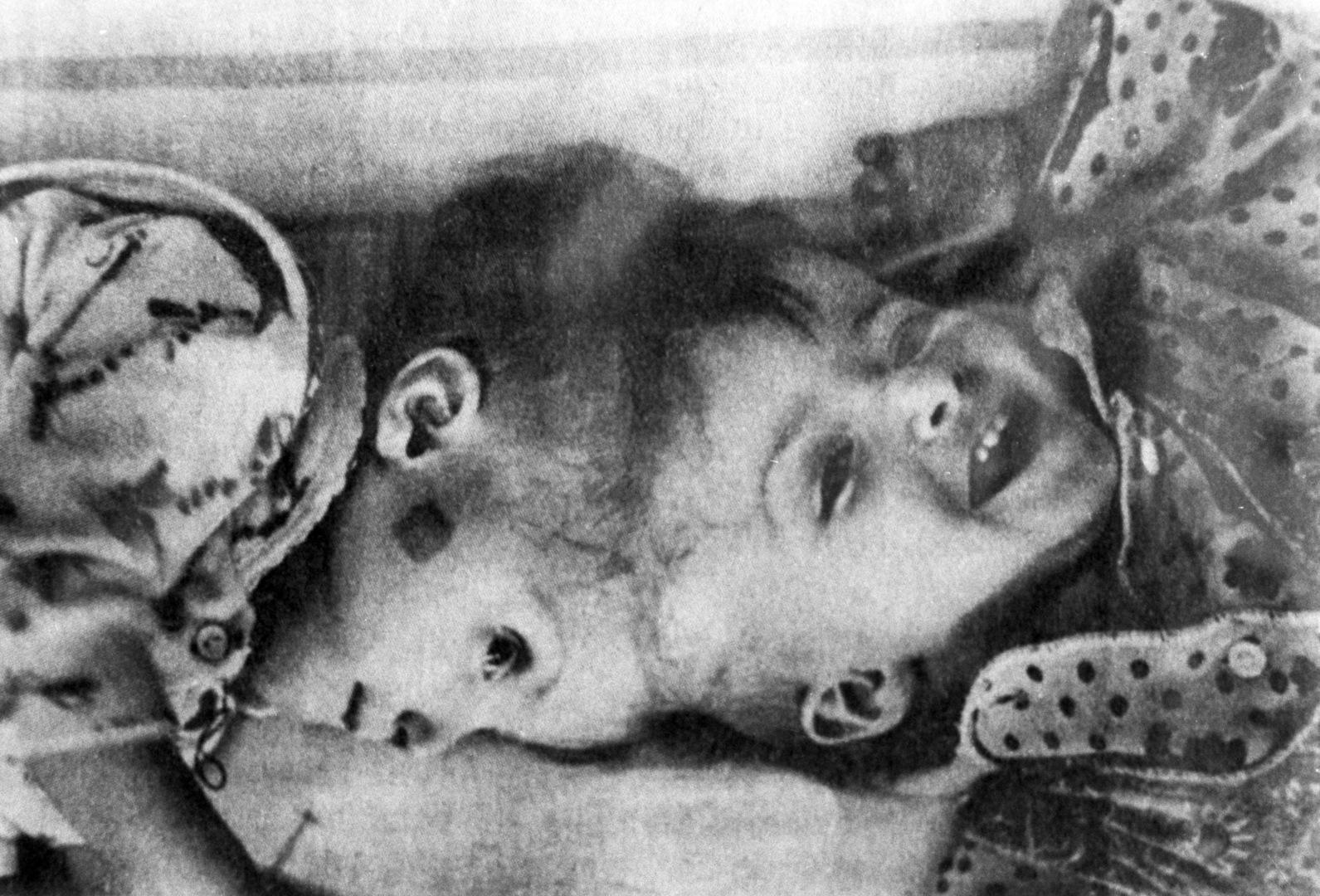 الأطباء الإيطاليون ينجحون في فصل توأمين سياميين لطفلتين موصولتين عند مستوى الجمجمة