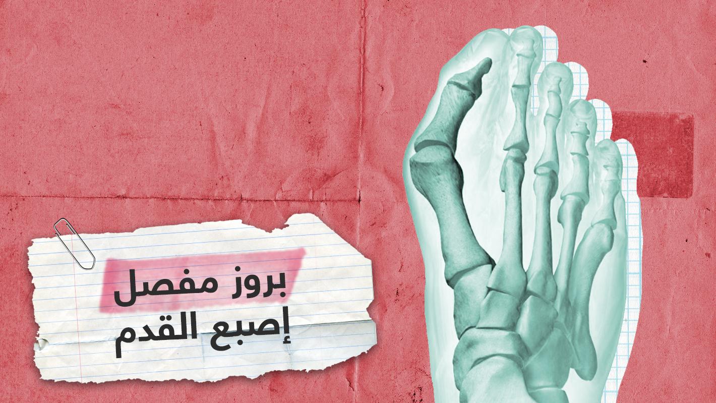 الوكعة.. حالة طبية شائعة تصيب إصبع القدم الكبير تعرف على أسبابها وعلاجها