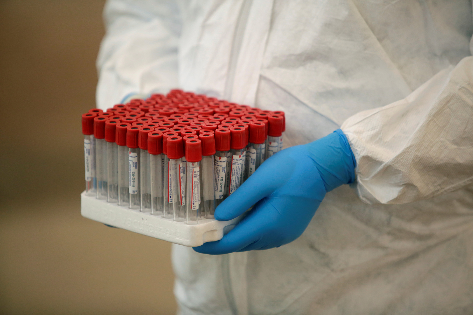 صحيفة: نجاح نموذج جديد لاختبار يكشف الأجسام المضادة لكورونا