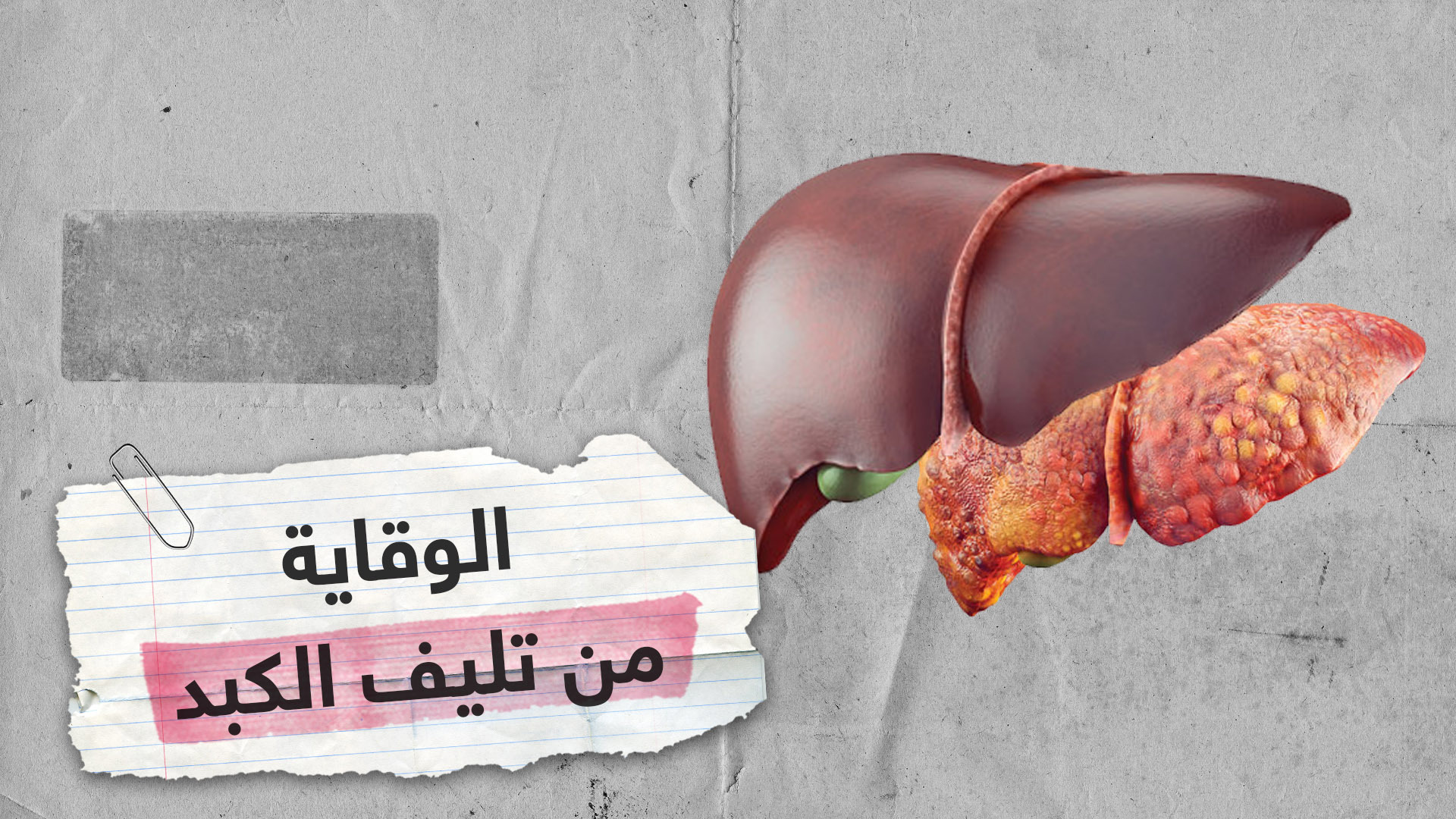 Important information for preventing cirrhosis