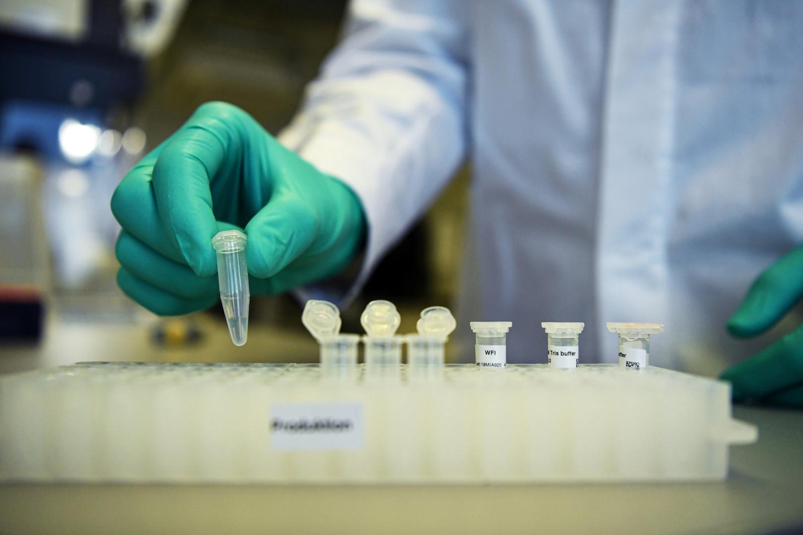 شركة كورية جنوبية تعتزم بدء الإنتاج التجاري لمادة الأجسام المضادة لفيروس كورونا في سبتمبر