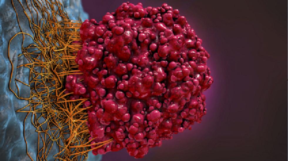 ابتكار مستحضر يقتل خلايا سرطان الثدي