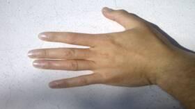 إلى ماذا تشير آلام مشط اليد؟