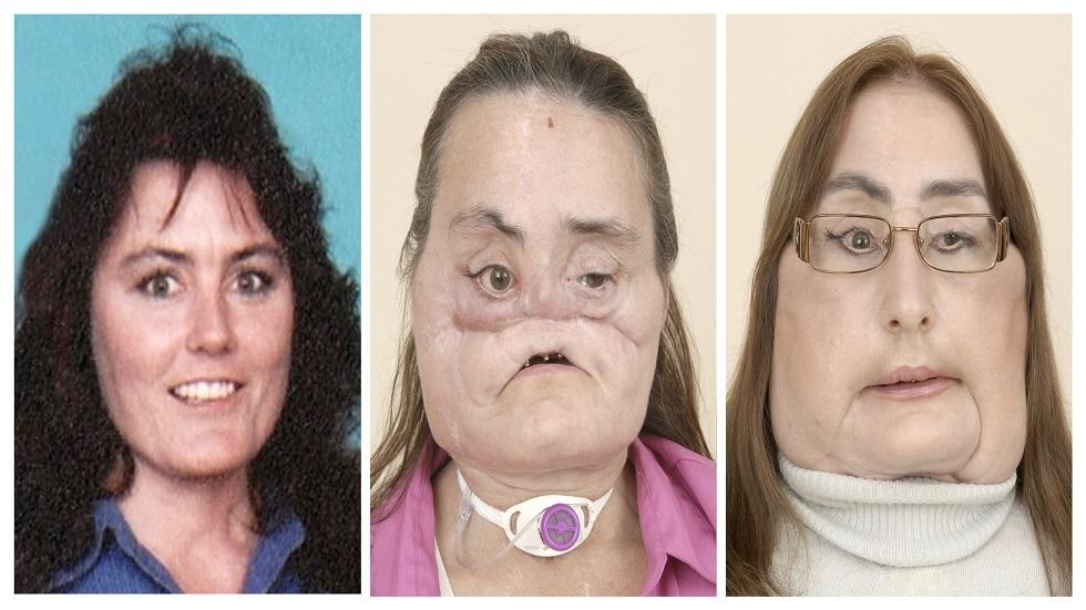 وفاة أكبر مريضة خضعت لعملية زرع وجه فى العالم بعد 12 عاما من الجراحة
