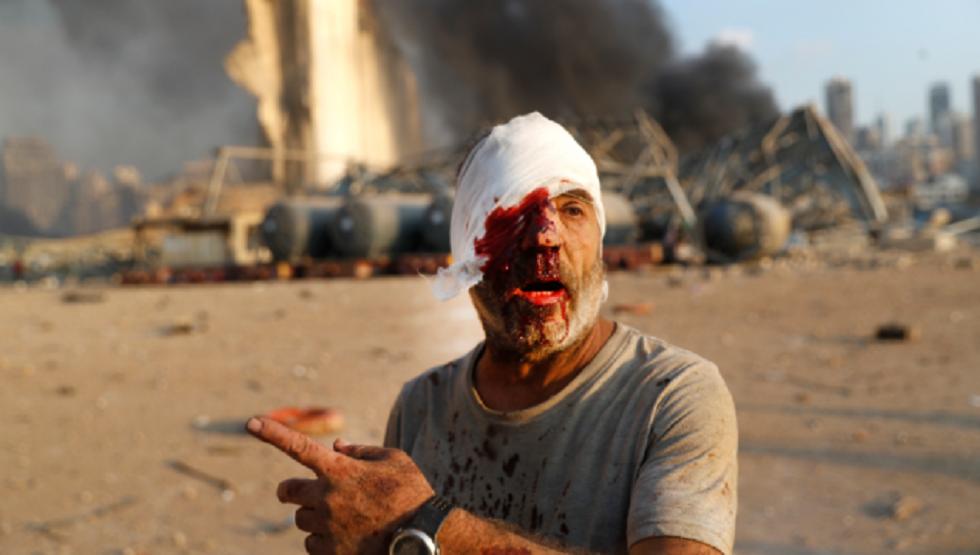 أحد المصابين في انفجار مرفأ بيروت وخلفه بعضٍ من الدمار الذي أحدثه