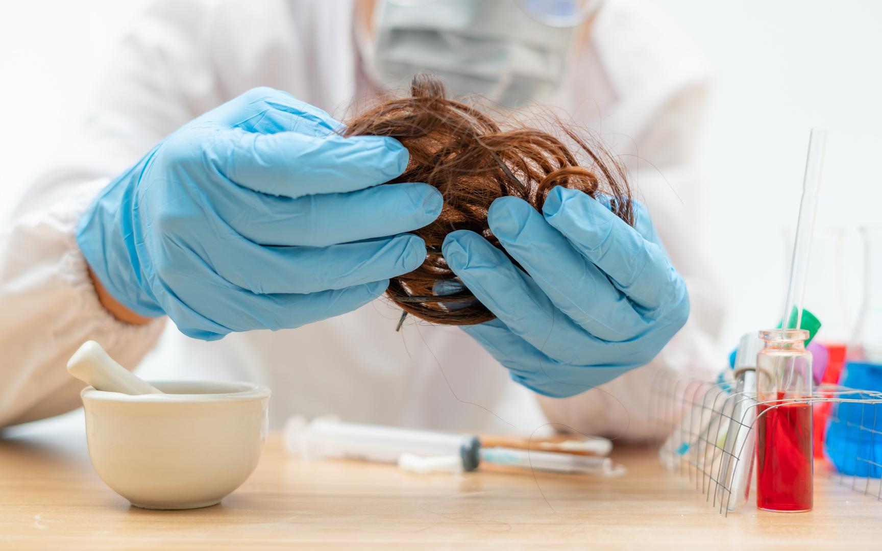 تساقط الشعر يضاف إلى الآثار الجانبية طويلة الأمد لـ