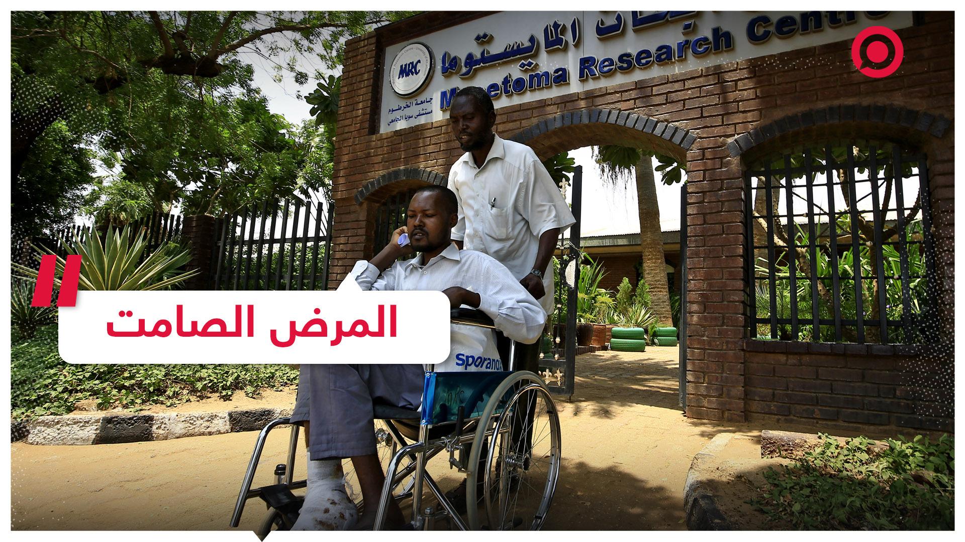 المايستوما.. مرض صامت يهدد آلاف السودانيين