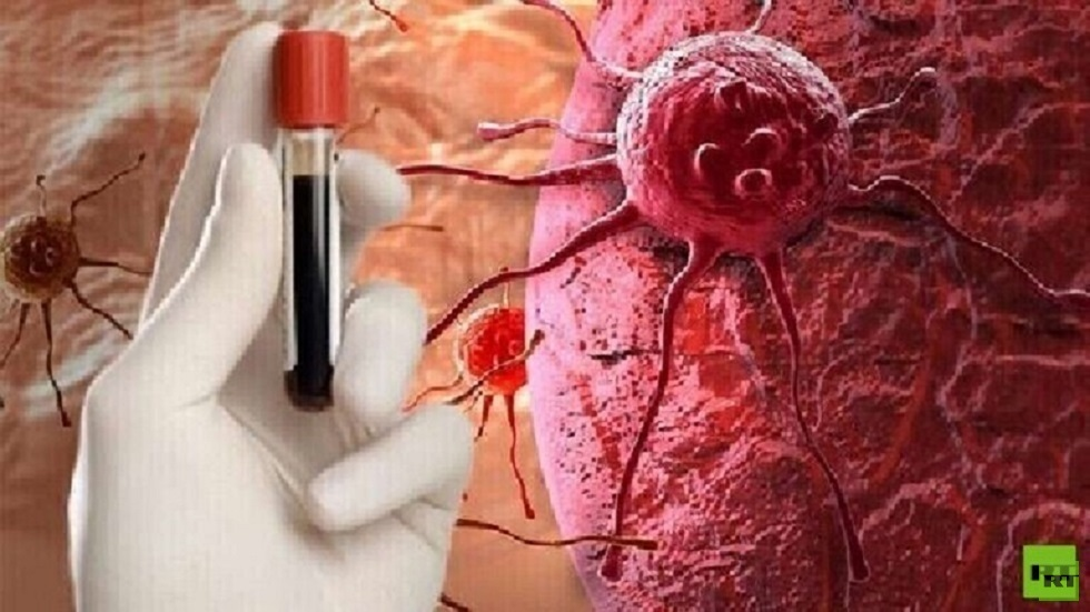 كشف أول أعراض سرطان الدم