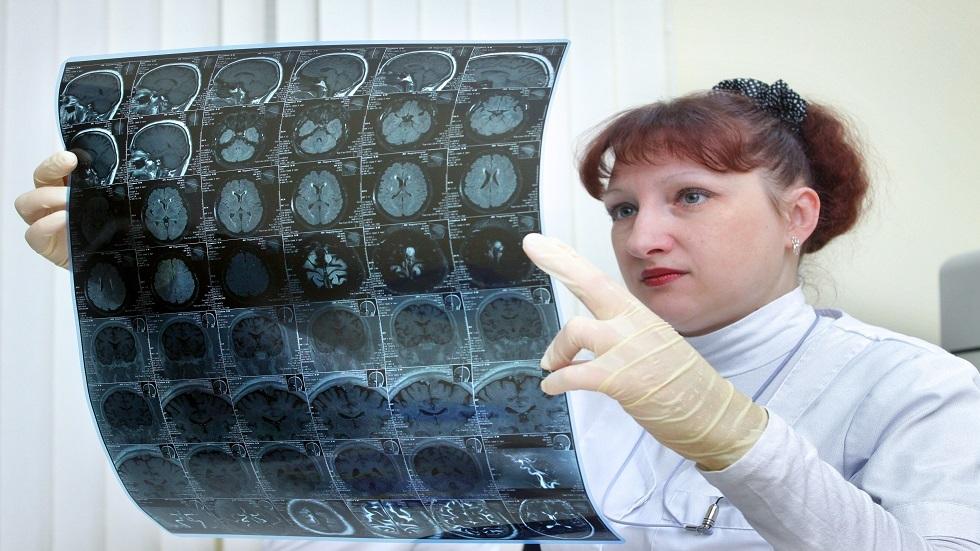 كشف علامة غير متوقعة لورم في الدماغ