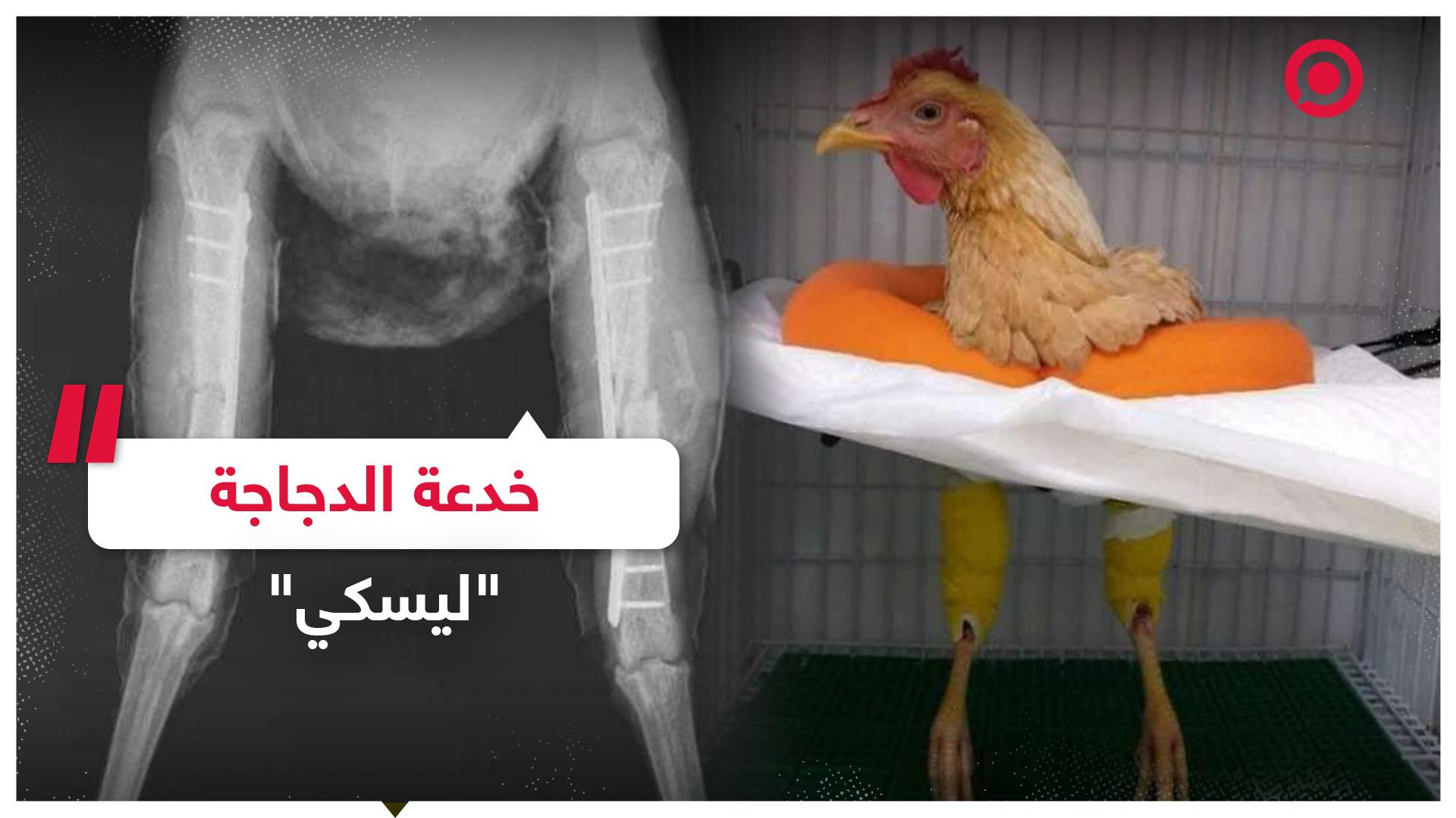 طبيب برازيلي يكشف خدعة الدجاجة ليسكي