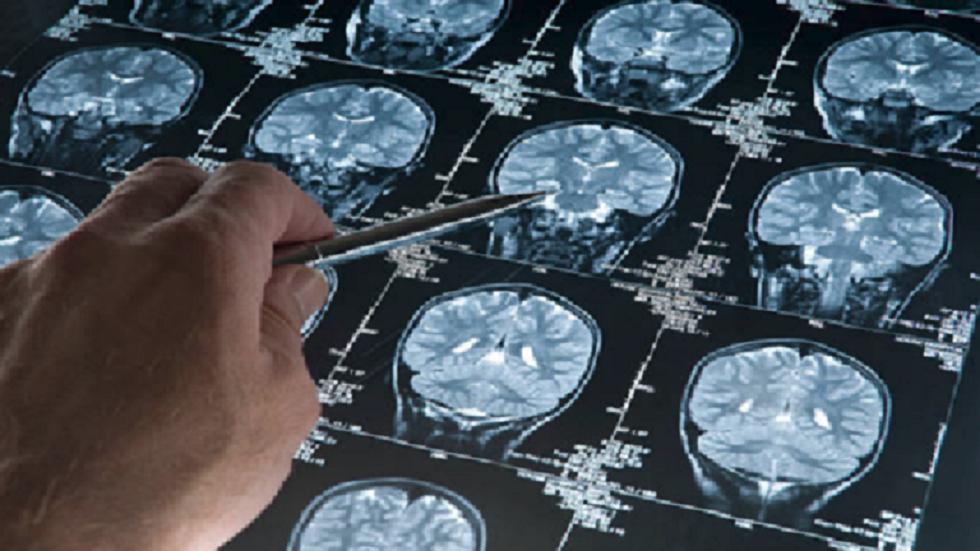 كشف خطورة الفركتوز على الدماغ