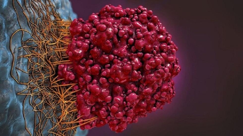 مكّون غذائي بسيط ورخيص يستهدف الآلية الأساسية المسببة للسرطان!