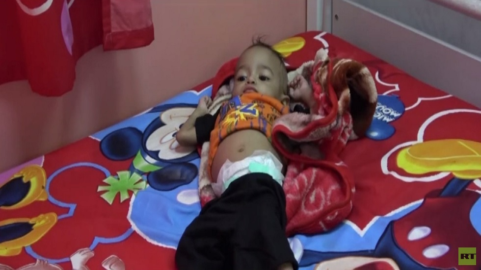 اليمن.. الحرب تفاقم معاناة الأطفال