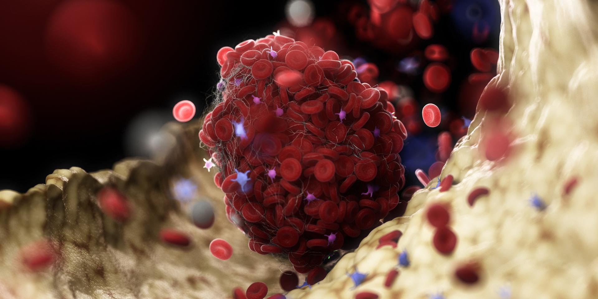 تحديد سبب جديد لجلطات الدم في حالات