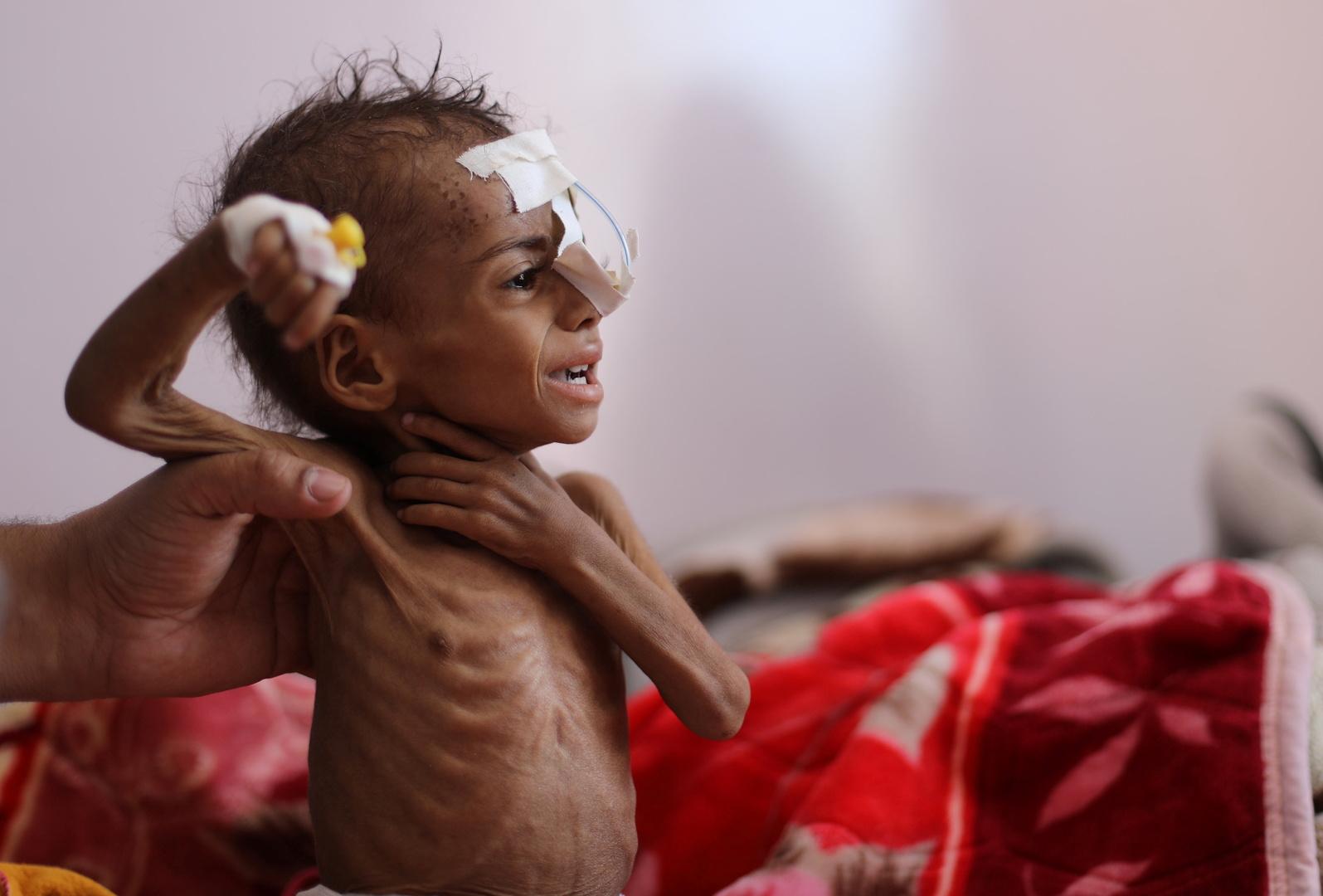 الأمم المتحدة تحذر من مجاعة جديدة تطال الملايين في اليمن