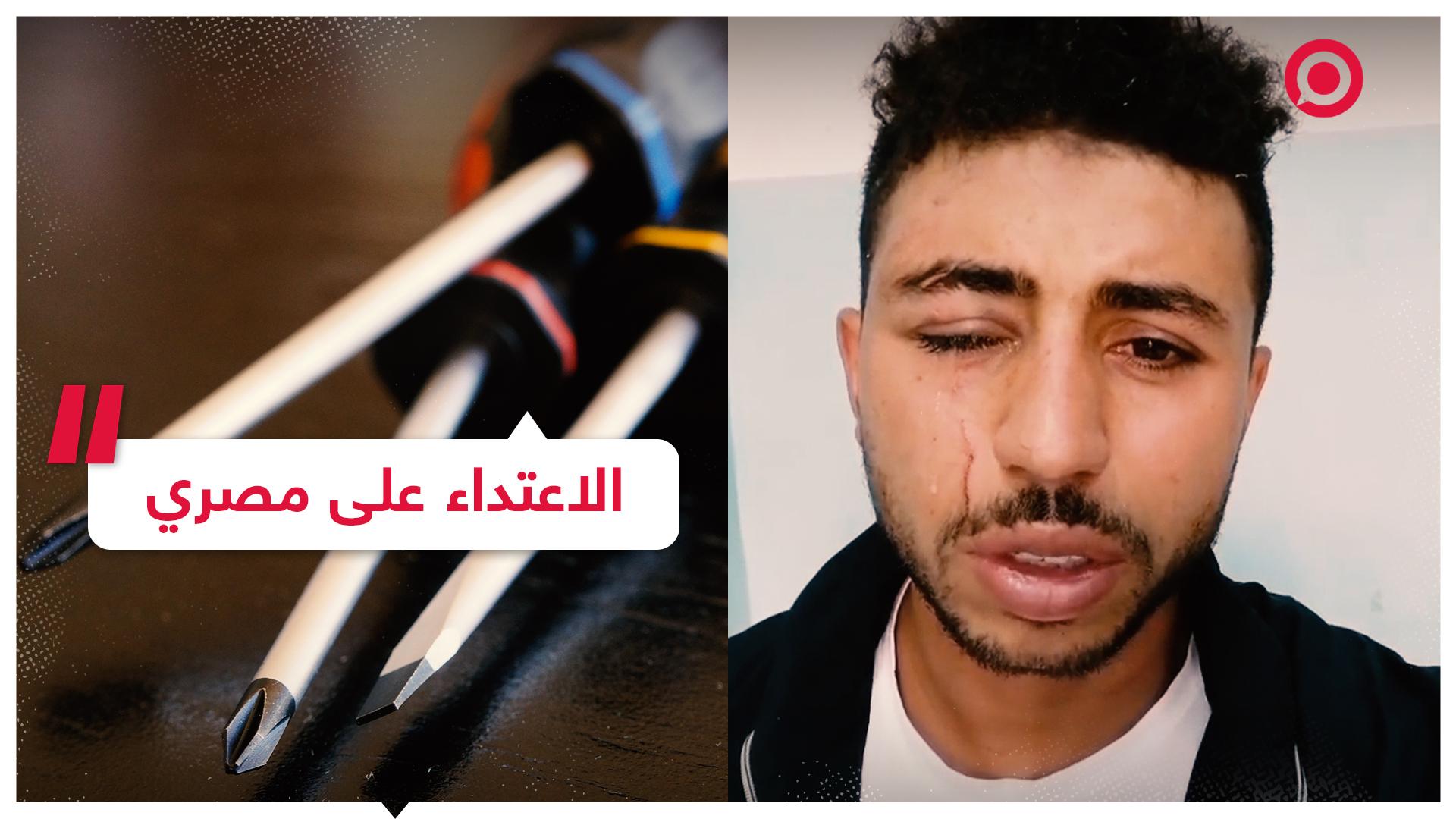 شاب مصري يتعرض لاعتداء يفقده عينه في الأردن