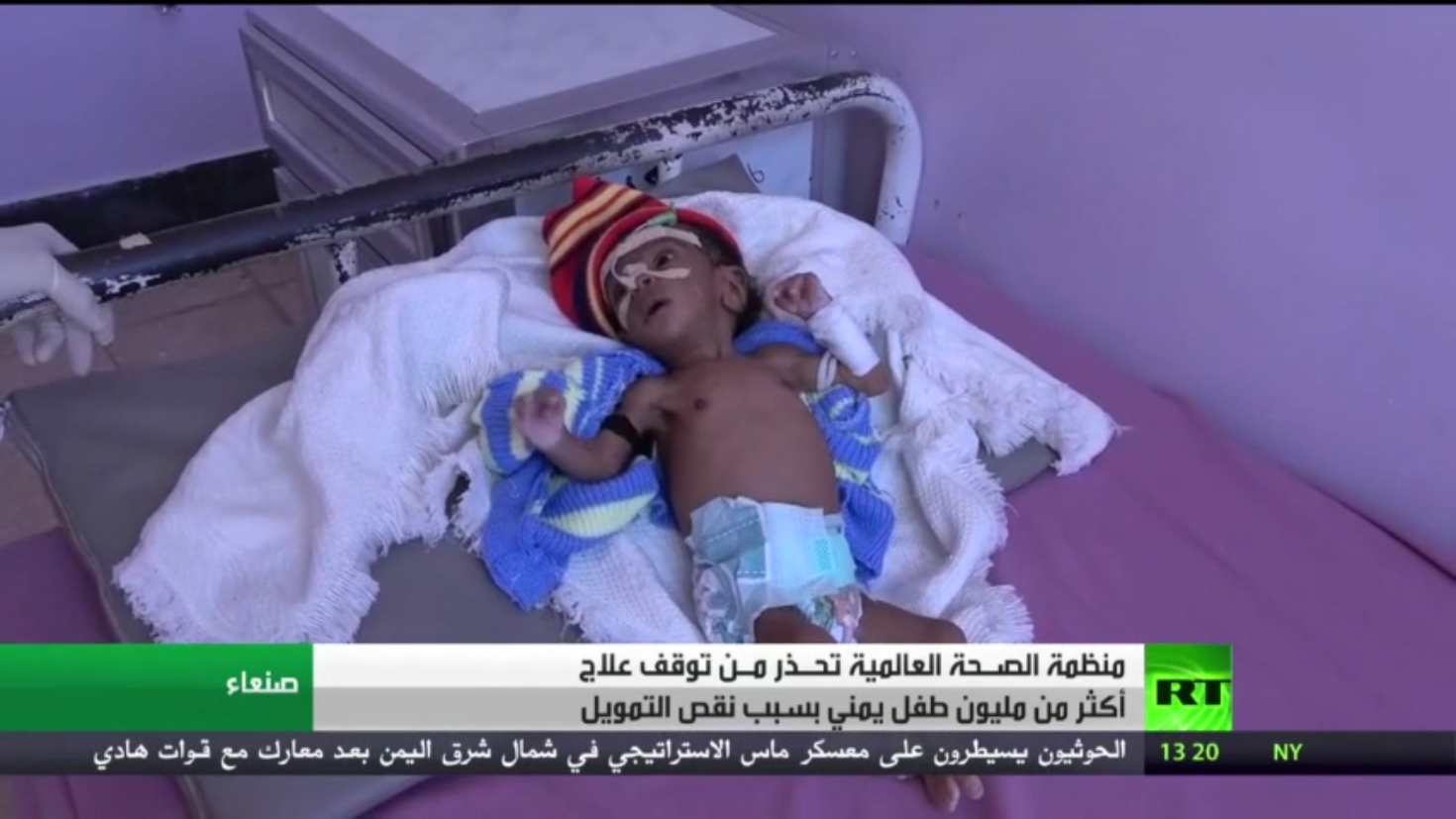 تحذير لمنظمة الصحة العالمية بشأن أطفال اليمن