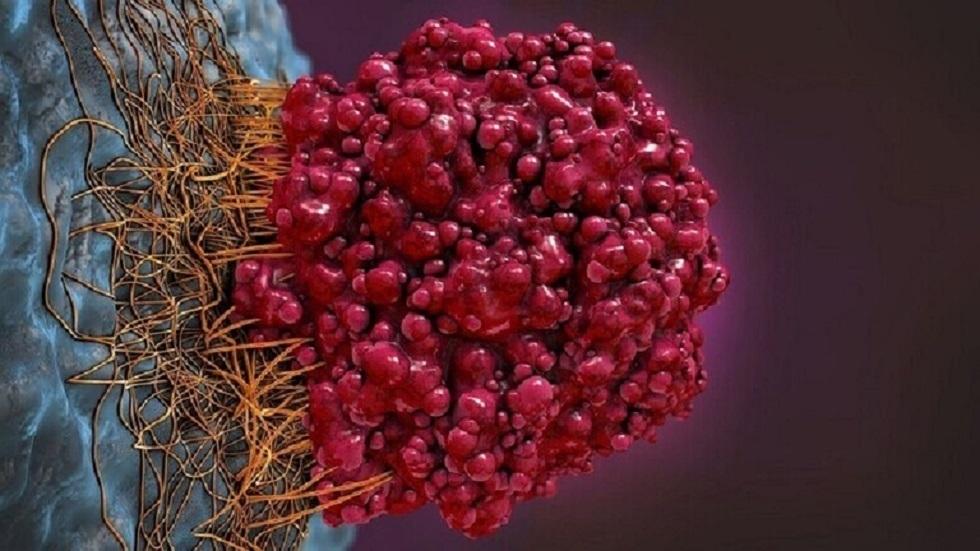 علماء يبتكرون طريقة جديدة لعلاج السرطان يأملون أن تحل مكان العلاج الكيميائي!