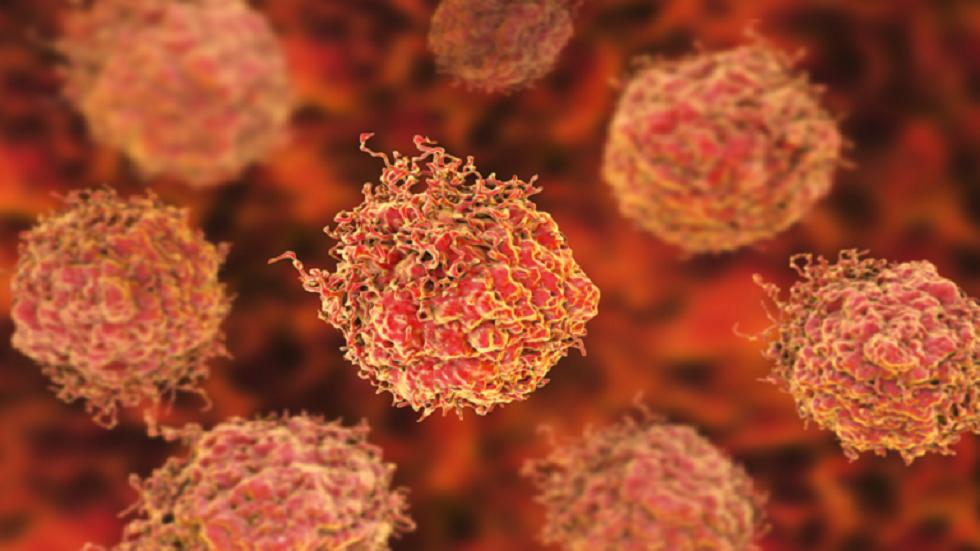 علامتان أقل شهرة لسرطان البروستات يمكن اكتشافهما!