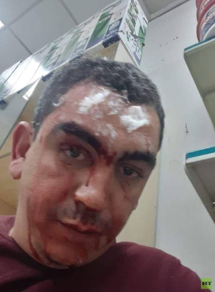 القاهرة: المعتدون على الصيدلاني المصري في السعودية قدموا على متن سيارتين بلوحتين كويتيتين