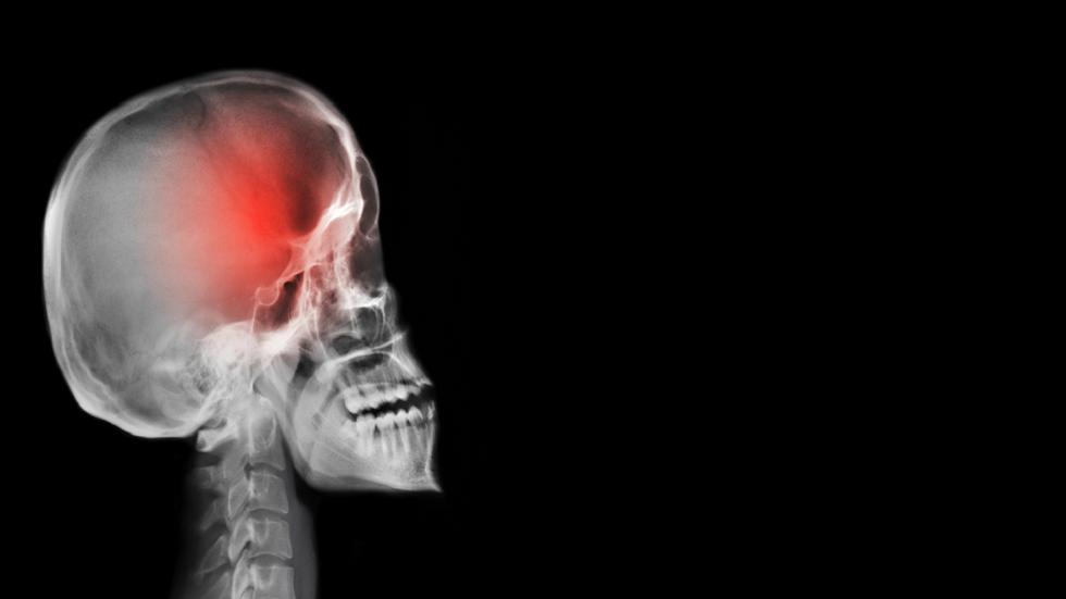 عملية الشفاء من السكتة الدماغية قد تؤدي إلى مرض قاتل!