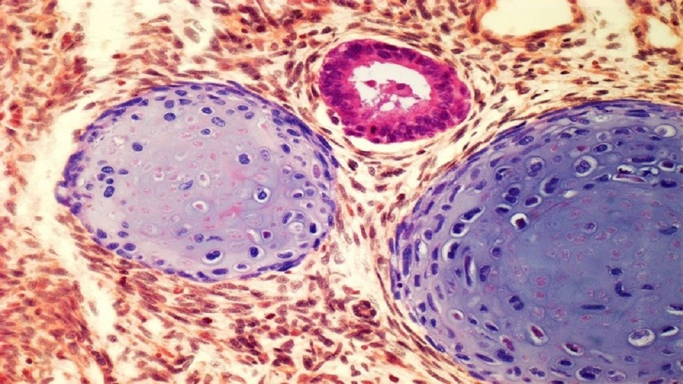 A medical procedure that can shed light on testicular cancer!
