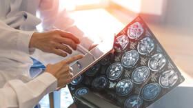 طفيلي في اللحوم غير المطبوخة جيدا والمياه الملوثة قد يرتبط بسرطان دماغ نادر
