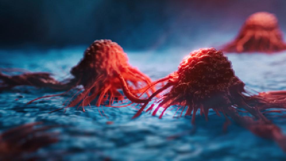 تغييرات في برازك ينبغي الحذر منها قد تكشف عن سرطان خطير!