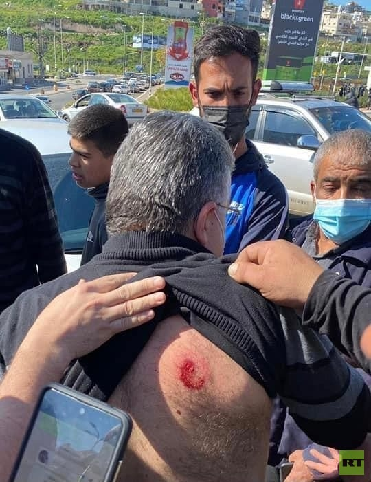إصابة النائب العربي يوسف جبارين خلال تفريق الشرطة الإسرائيلية تظاهرة في أم الفحم