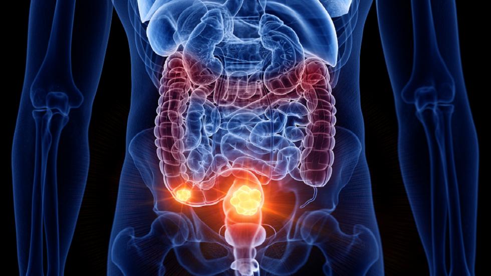 علامة في البراز قد تدلّ على الإصابة بسرطان الأمعاء!