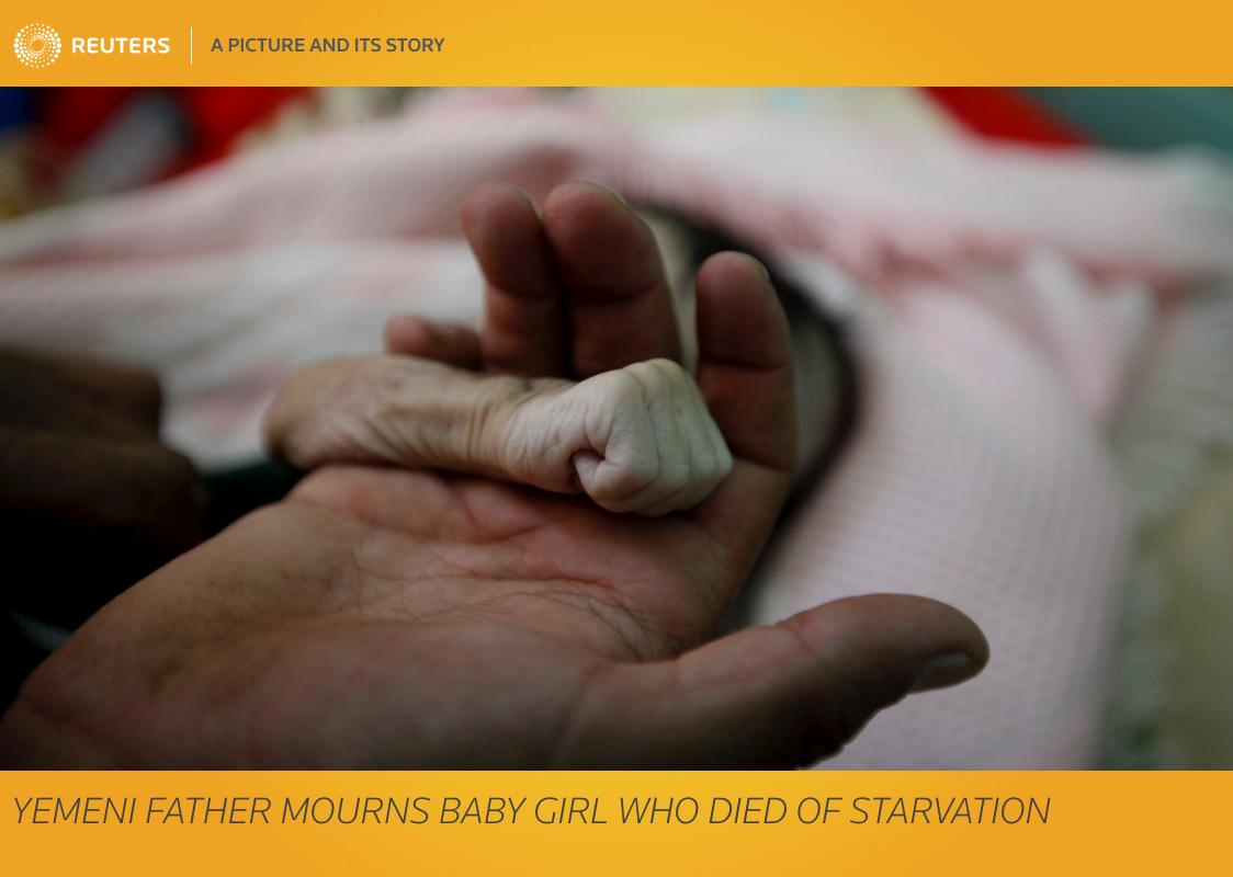 الأمم المتحدة: اليمن يتجه نحو أكبر مجاعة في التاريخ الحديث