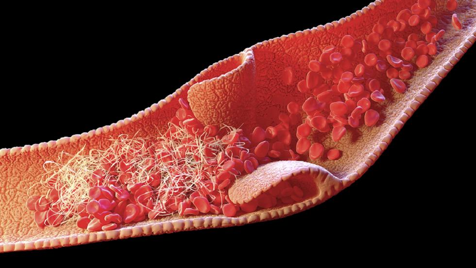 ما هي أعراض تجلّط الدم وكيف تكتشف الحالات الطارئة الطبية؟
