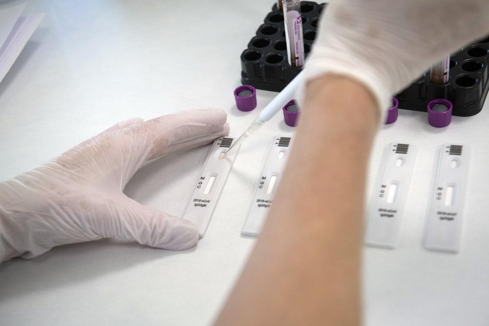 غينسبرغ يكشف بيانات متعلقة بإنتاج الأجسام المضادة لدى من عانى من كوفيد