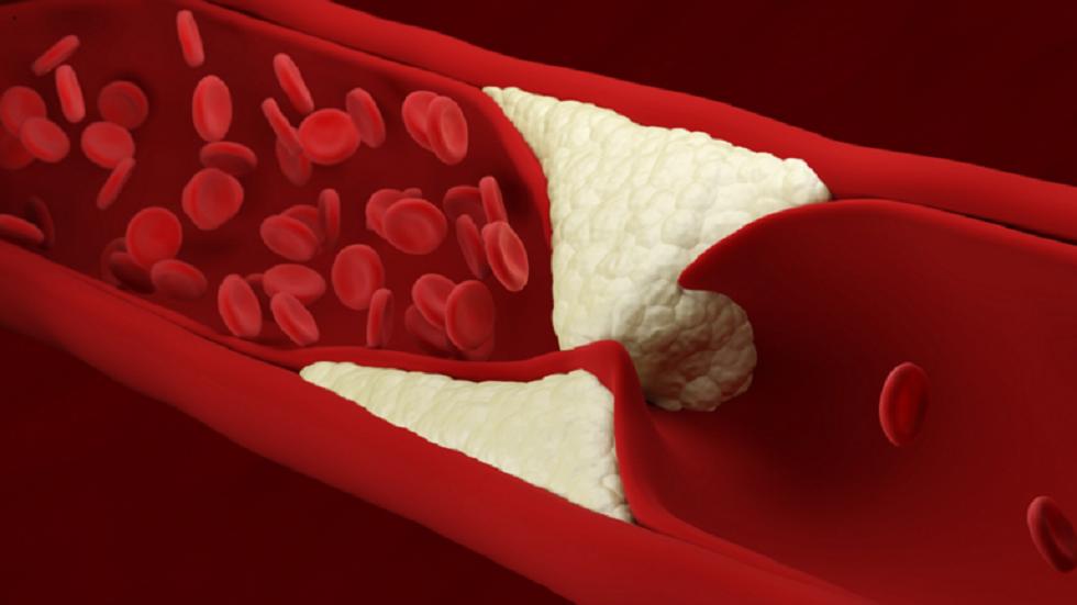 شرح أفضل طريقة لبدء خفض مستويات الكوليسترول!