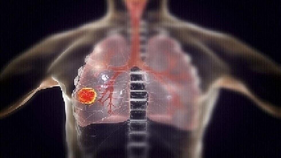 العلماء يحددون بروتينا قد يكون بمثابة هدف علاجي لسرطان الرئة