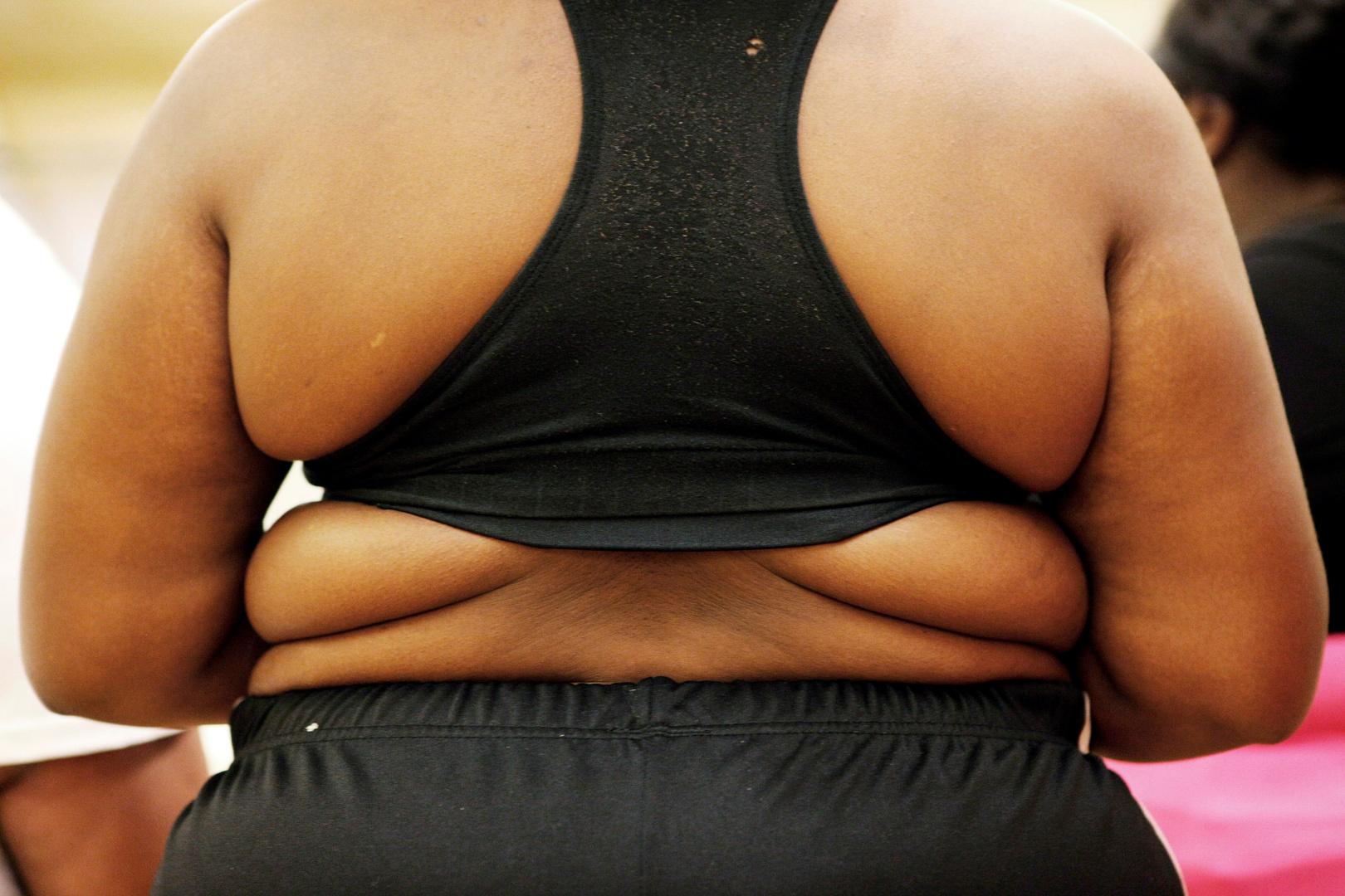 <a href='/tags/186407-%D8%B7%D8%A8%D9%8A%D8%A8%D8%A9'>طبيبة</a> تكشف سببا مفاجئا لزيادة الوزن