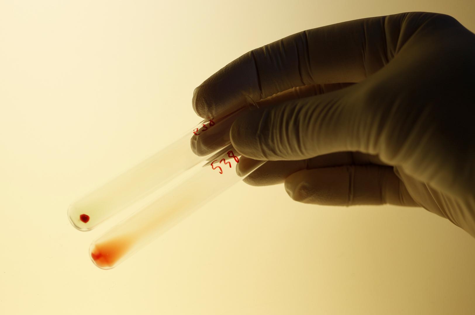 علماء  يكتشفون علاقة بين أمراض خطيرة ونوع فصيلة الدم