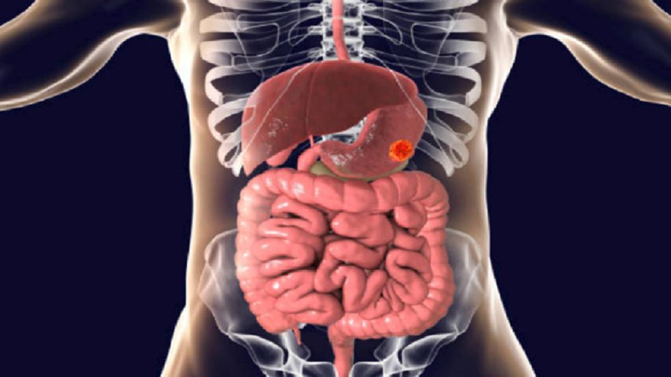 هل يتطور التهاب المعدة إلى سرطان؟