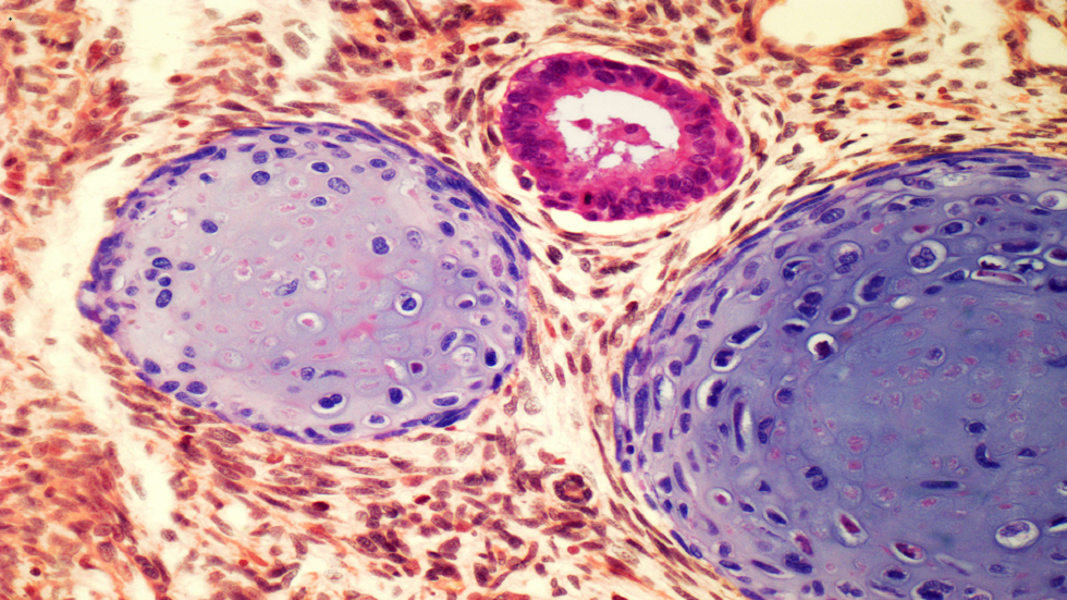 5 أعراض رئيسية لسرطان الخصية ينبغي عدم تجاهلها حسب دراسة جديدة!