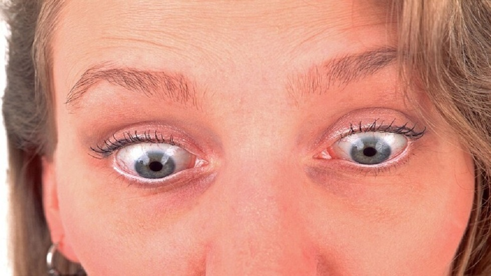 Diseases indicated by bluessess of the skin under the eyes