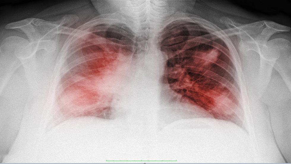 دراسة جديدة تفسر سبب انخفاض مستويات الأكسجين لدى مرضى