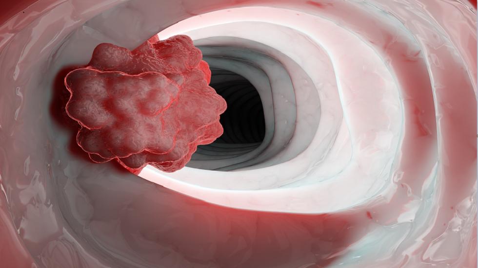 3 تغييرات رئيسية تنذر بخطر إصابتك المحتملة بالسرطان!